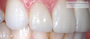 Orthodontics - Does It Hurt?